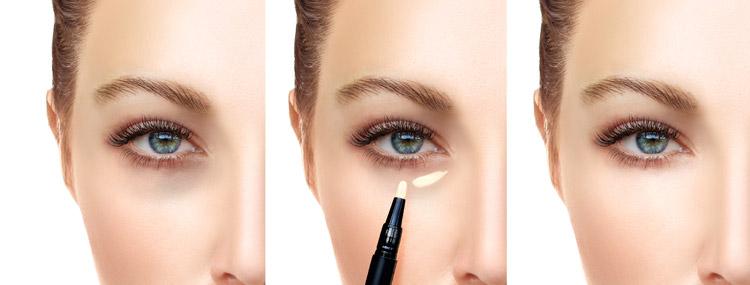 Dunkelblaue Augenringe