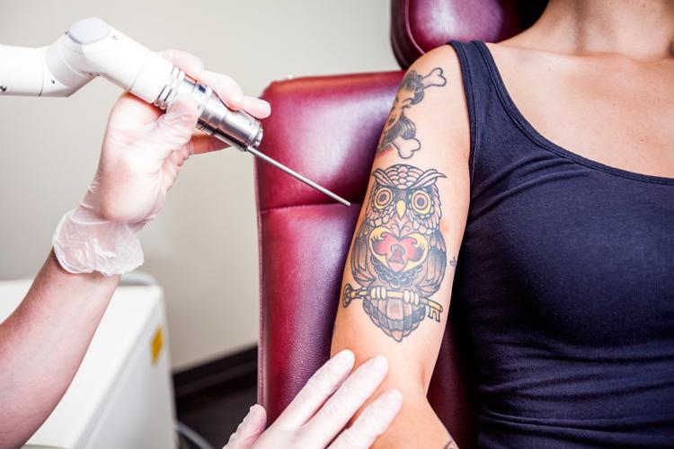 tattoo laser entfernung