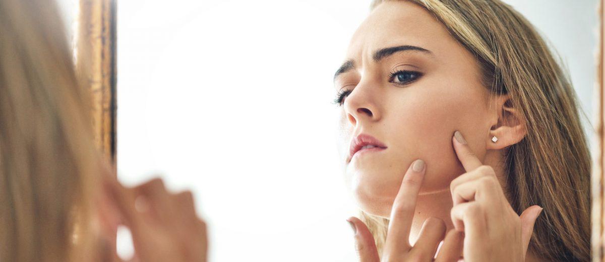 Gut Zu Wissen Was Tun Bei Unreiner Haut Ab 30