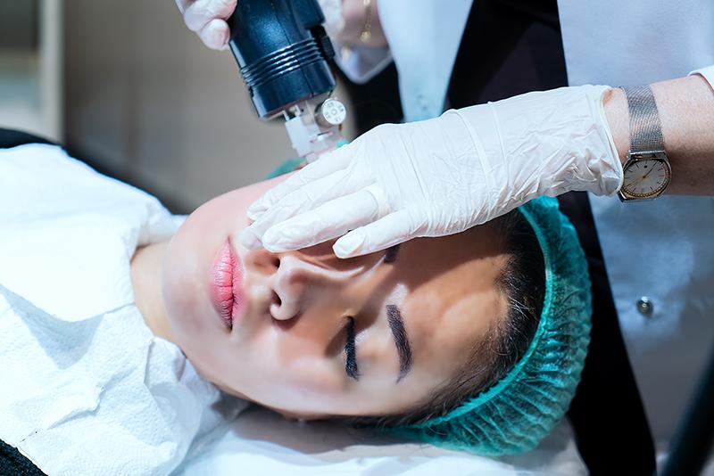 junge frau bekommt eine microneedling behandlung bei der kosmetikerin